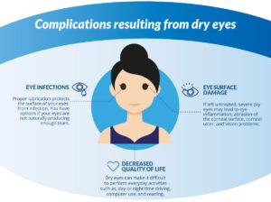 Dry Eyes Complication